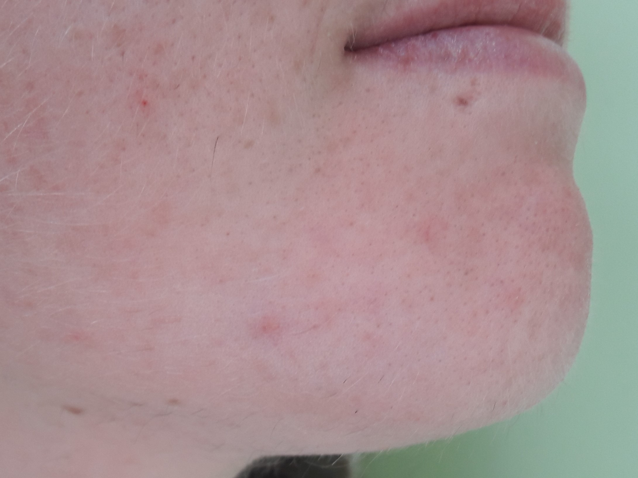 Treatments | Elaine Stoddart